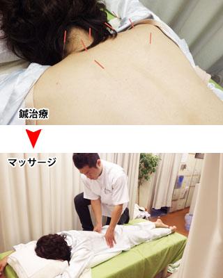 鍼灸とマッサージとの併用治療:浅草橋のマッサージ ぎっくり腰、はり、骨盤矯正なら 森の治療院