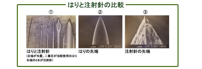 はりと注射針の比較:台東区のマッサージ ぎっくり腰、はり、骨盤矯正なら 森の治療院