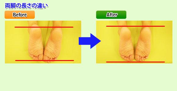 両足の長さの違い:東京都台東区のマッサージ ぎっくり腰、はり、骨盤矯正なら 森の治療院