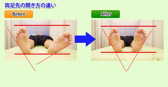 両足先の開き方の違い:東京都台東区のマッサージ ぎっくり腰、はり、骨盤矯正なら 森の治療院