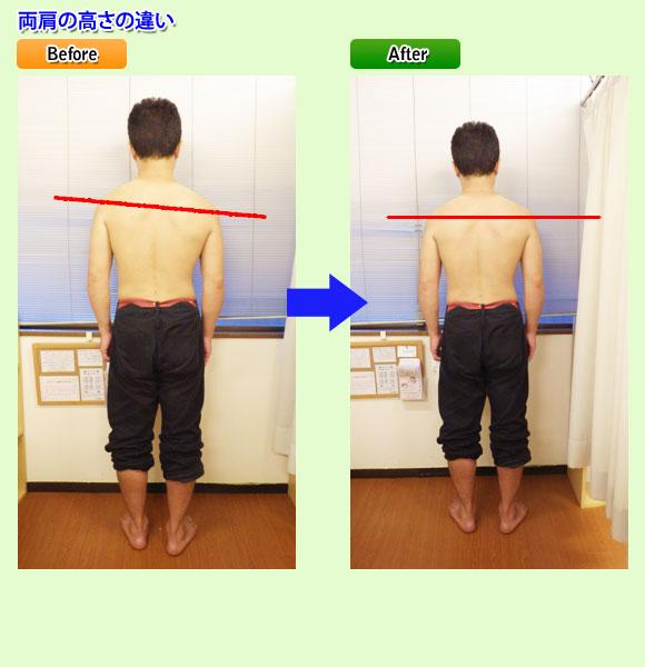 両肩の高さの違い:東京都台東区のマッサージ ぎっくり腰、はり、骨盤矯正なら 森の治療院